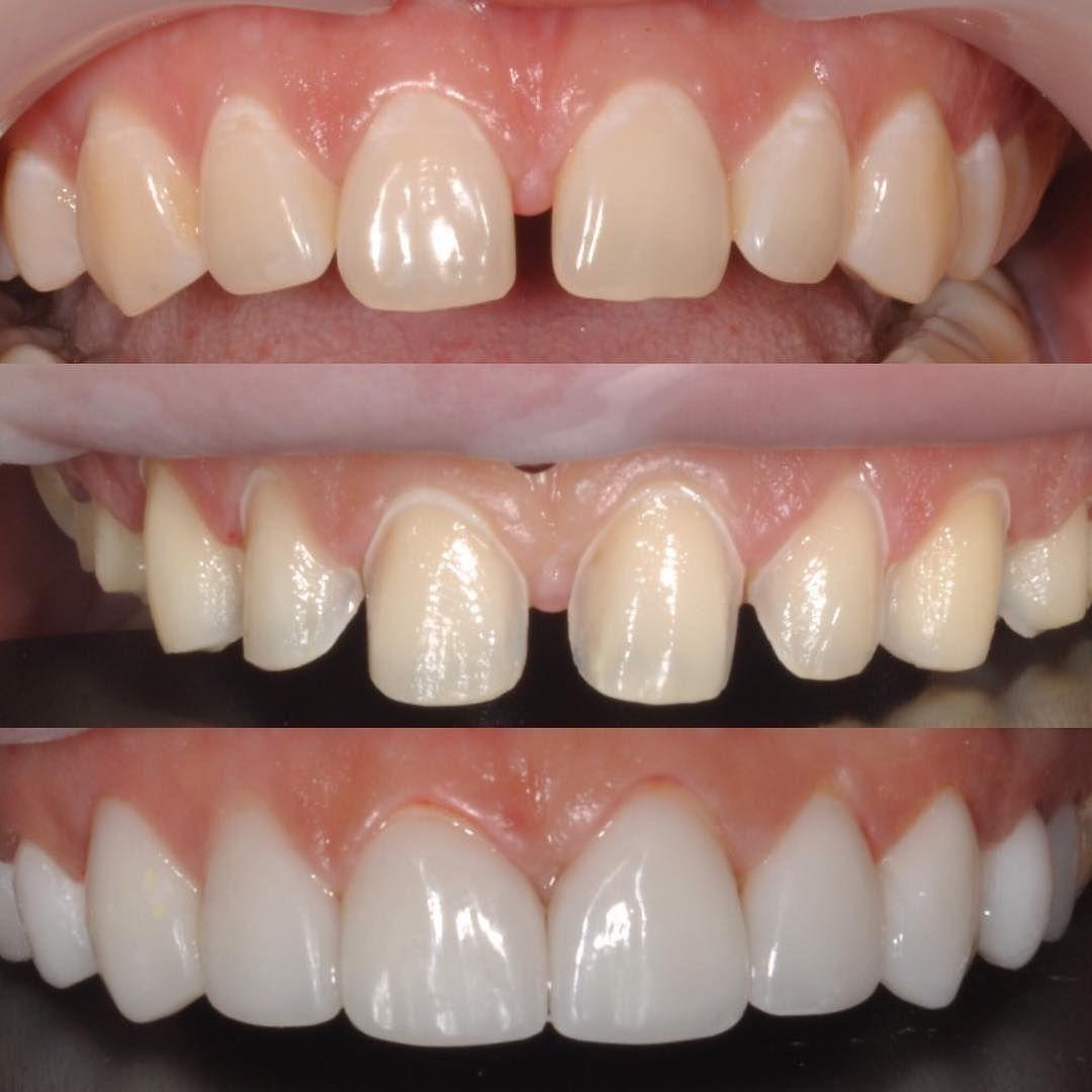 درمان فاصله بین دندان ها و کامپوزیت ونیر
