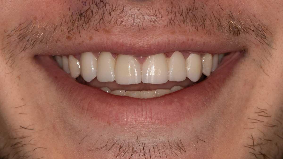 بعد از پل دندان