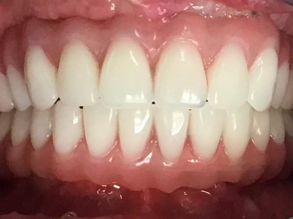 درمان پروتز دندان