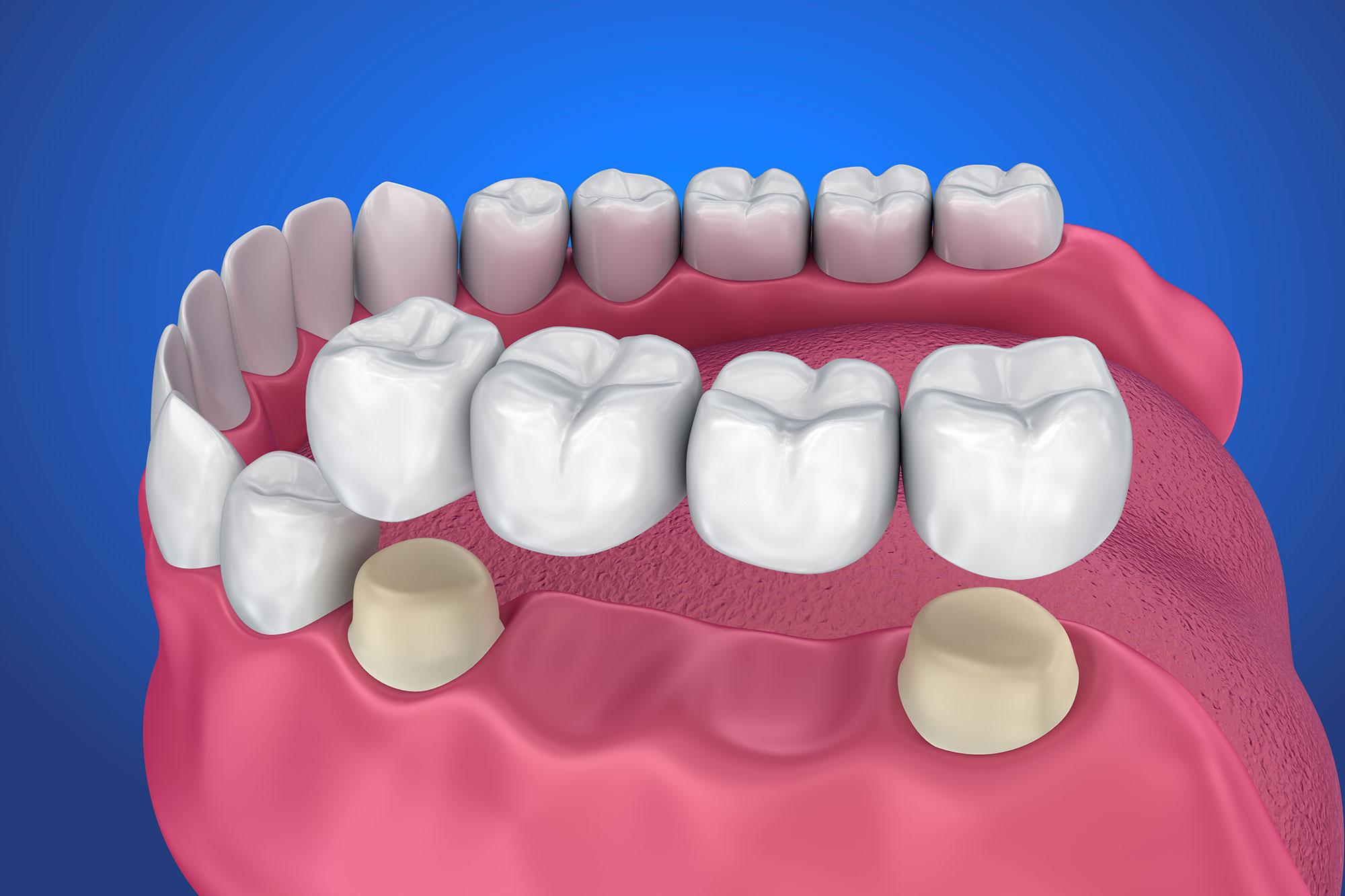 پروتز های ثابت و متکی بر دندان