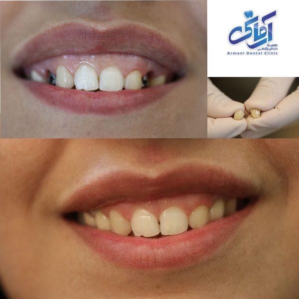 طرح درمان ایمپلنت دندان جایگزین