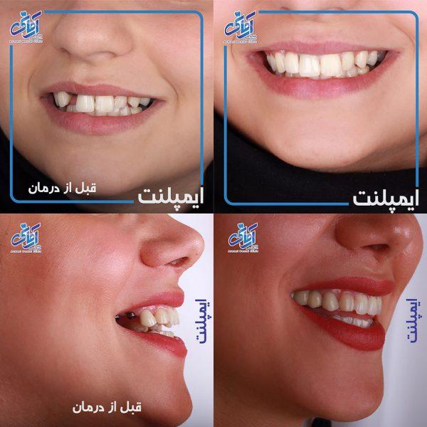 طرح درمان ایمپلنت دندان