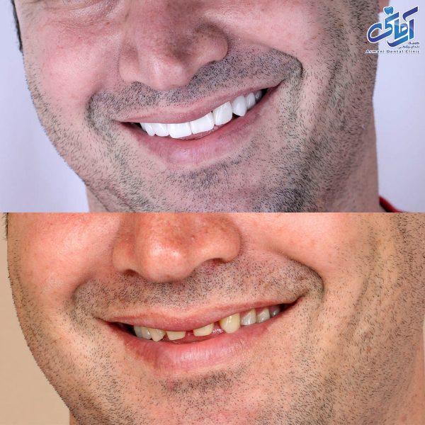 لمینت دندان سرامیکی