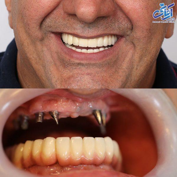ایمپلنت کامل قبل و بعد درمان