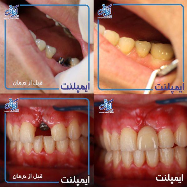 طرح درمان ایمپلنت کامل
