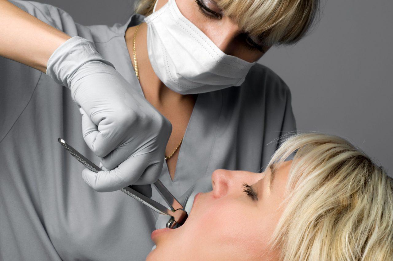 یکی از سوالات مرسوم بین بیماران این است که آیا حتماً باید دندان عقل را کشید یا می توان آن را نگه داشت؟