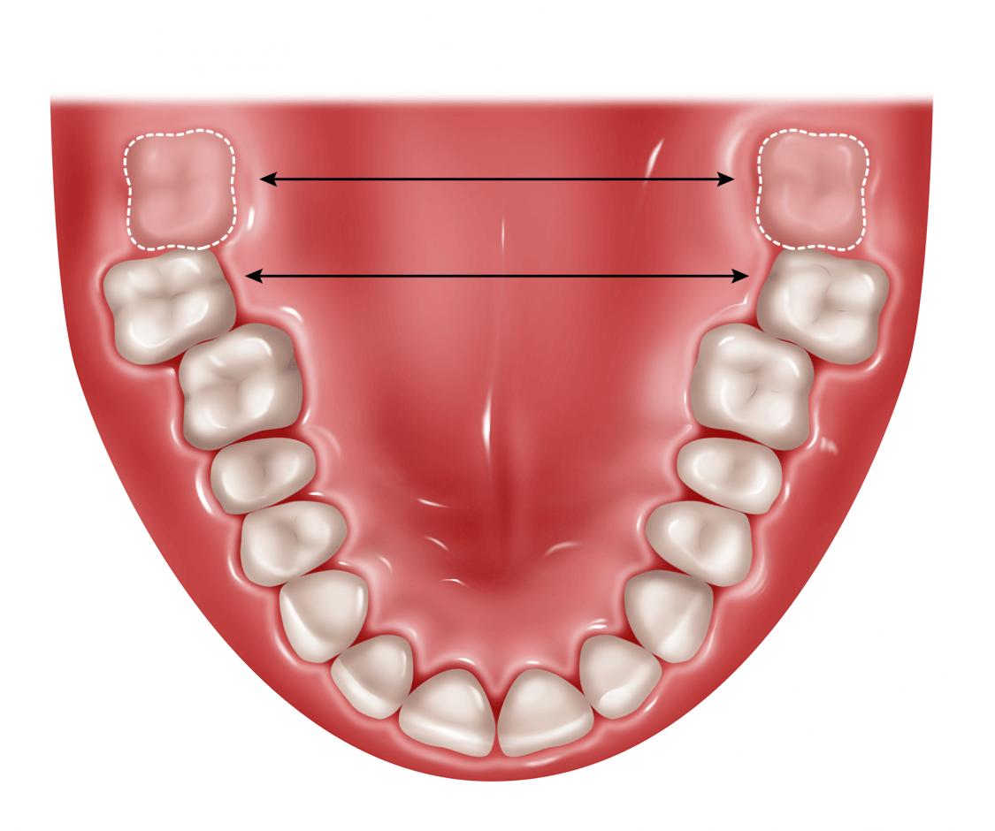 چند چیزی که باید در مورد دندان عقل تحت فشار بدانید
