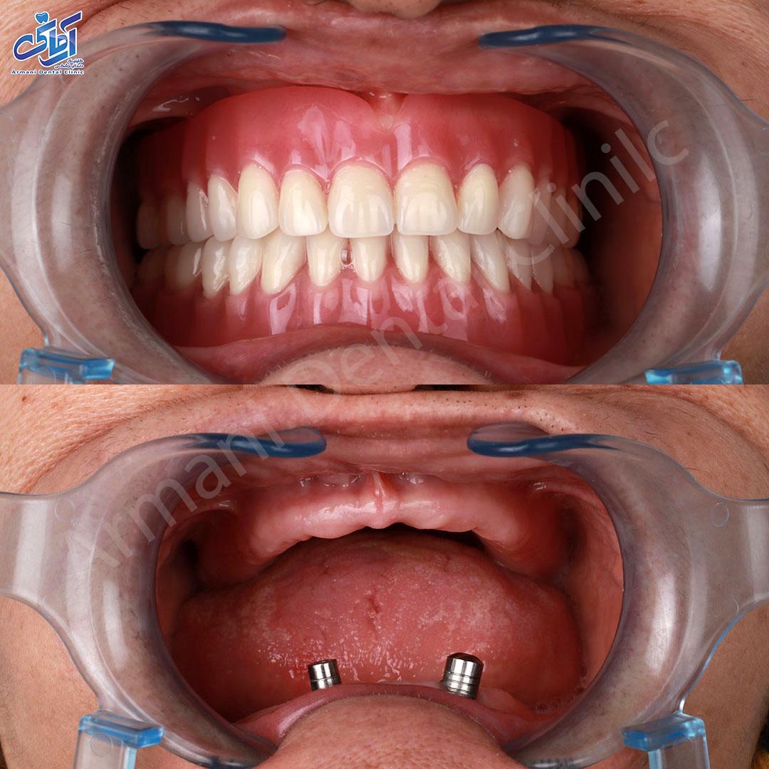 عکس قبل و بعد دندان مصنوعی اوردنچر