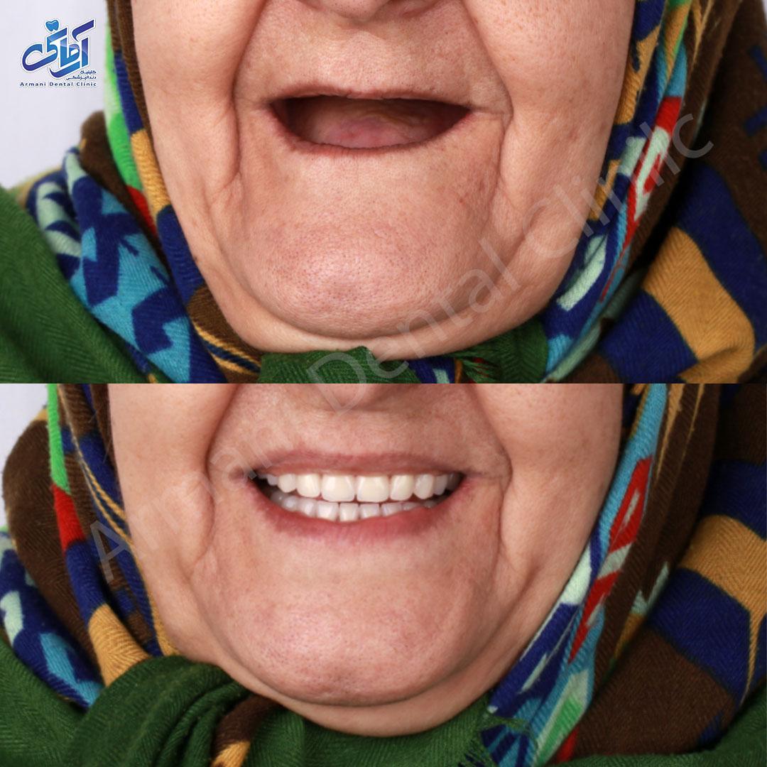 عکس قبل و بعد دندان مصنوعی