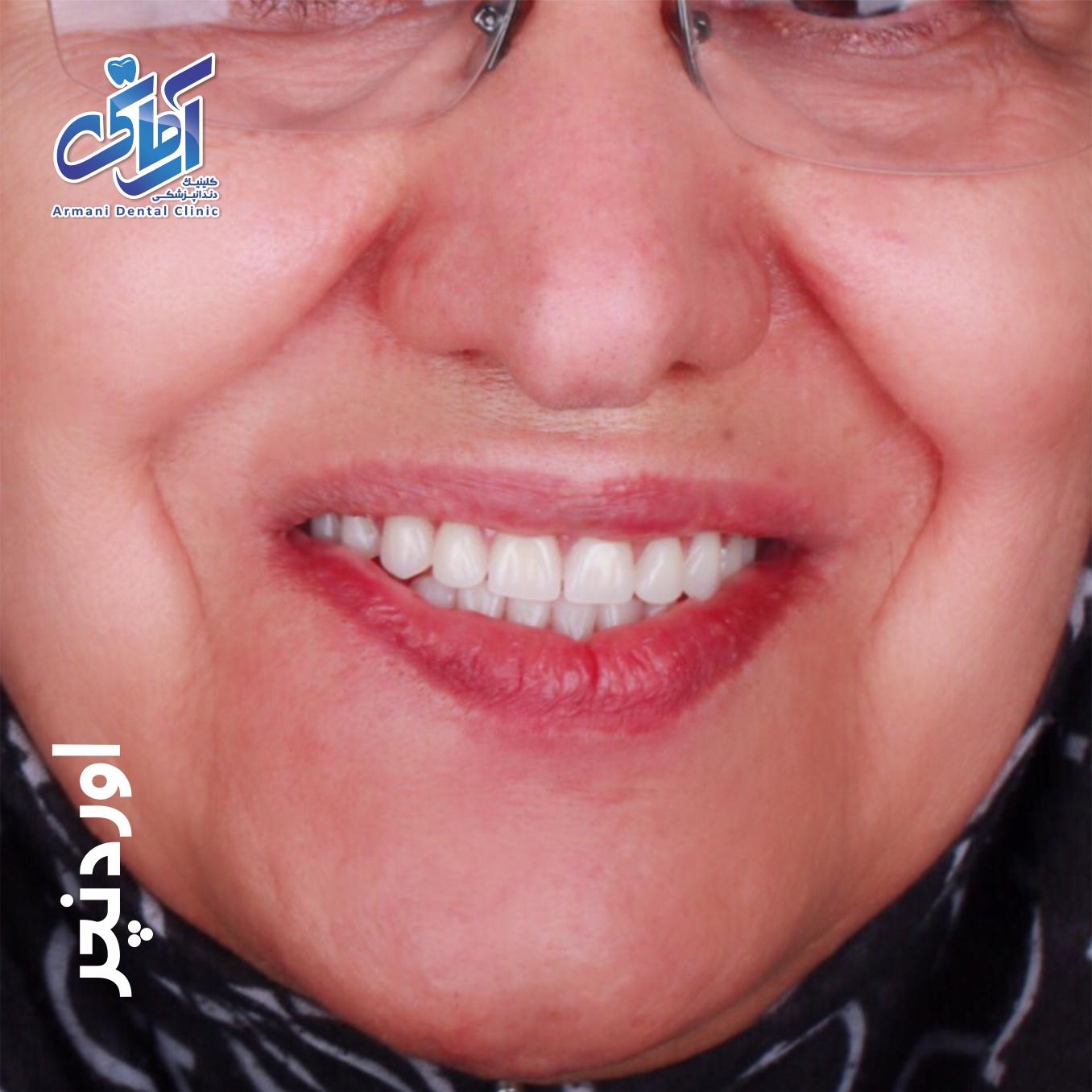 عکس قبل و بعد دندان اوردنچر