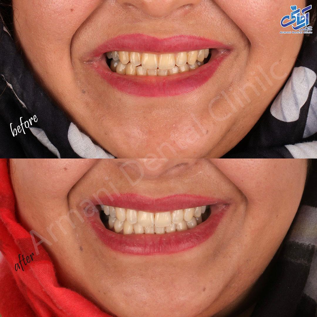 قبل و بعد سفید کردن دندان