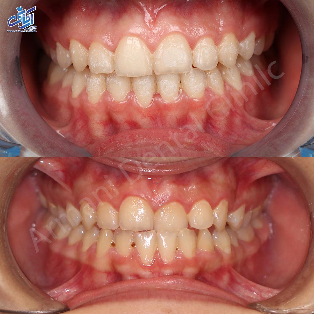 تصاویر قبل و بعد درمان ارتودنسی