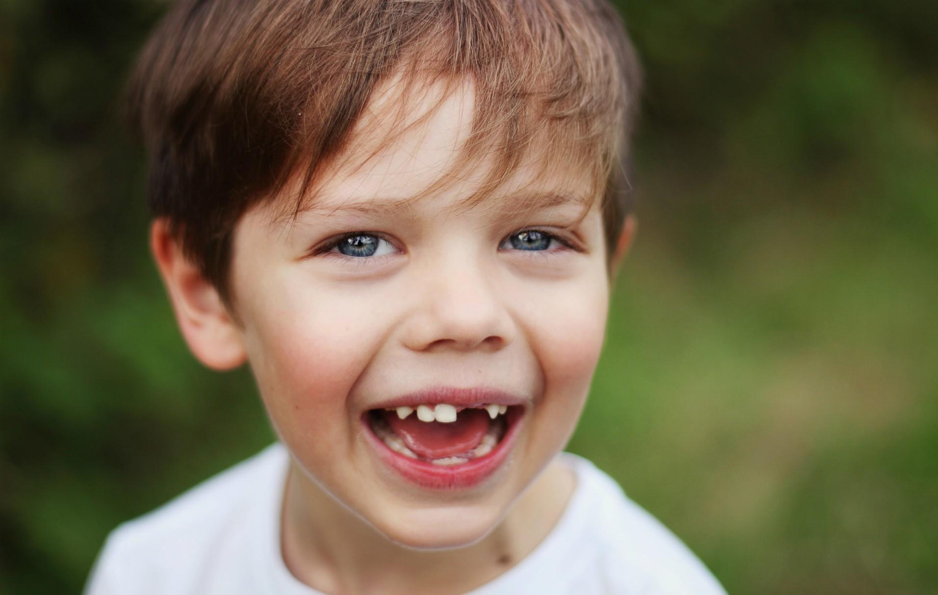 پوسیدگی دندان های شیری در کودکان و عواقب آن بر دندان های دائمی در صورت عدم درمان