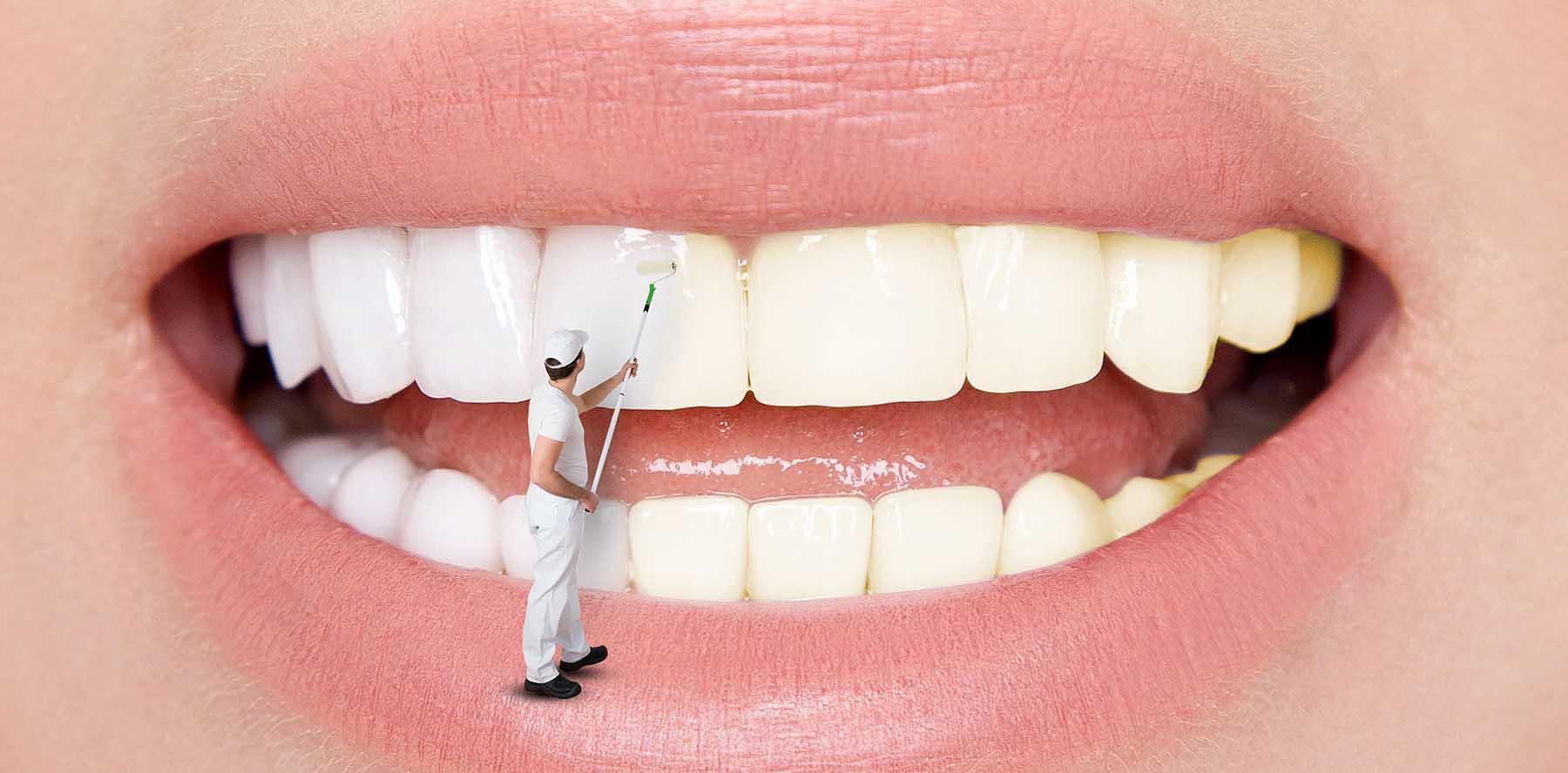 لکه های سفید دندان