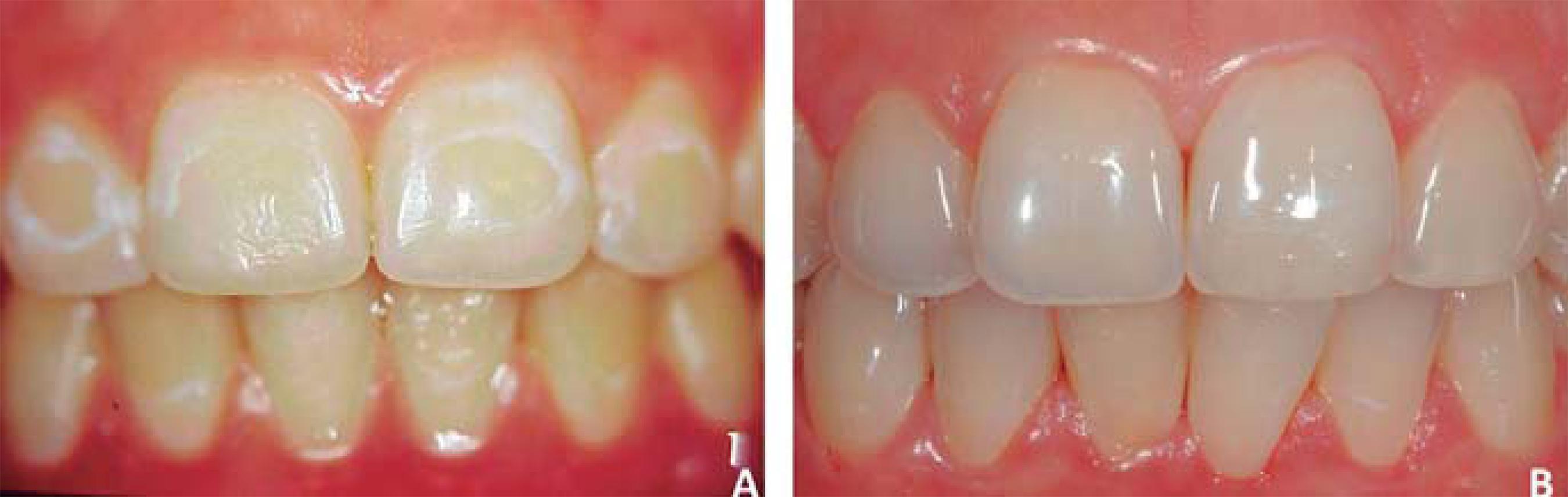 لکه های سفید بر روی دندان
