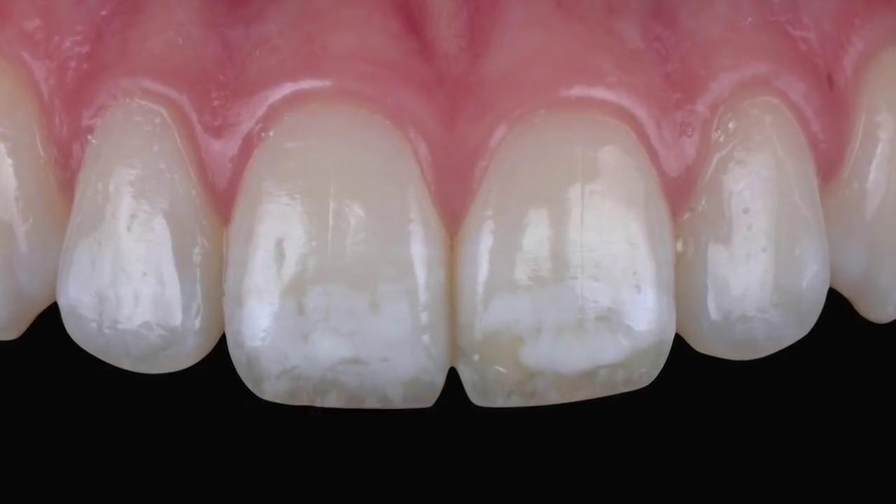 ٦ نکته برای پیشگیری از ابتلا به لکه های سفید دندانی
