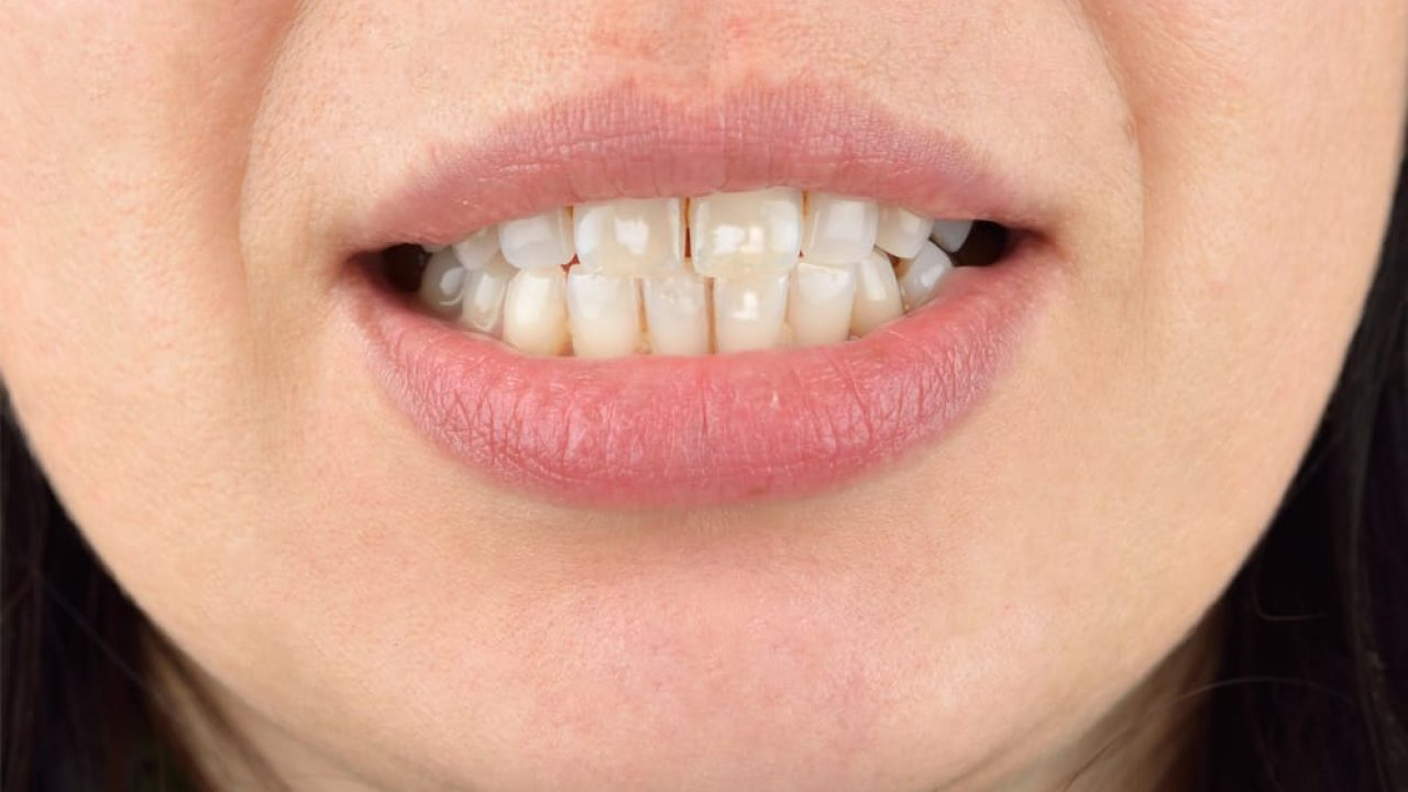 لکه های سفید نامرتب بر روی دندان ها