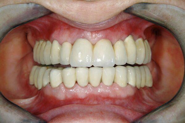 فواید کاشت دندان یا درمان ایمپلنت