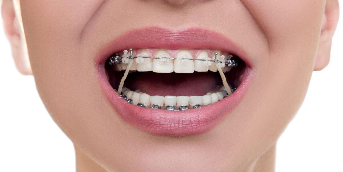 لبخند زیبا با دندانهای ارتودنسی شده