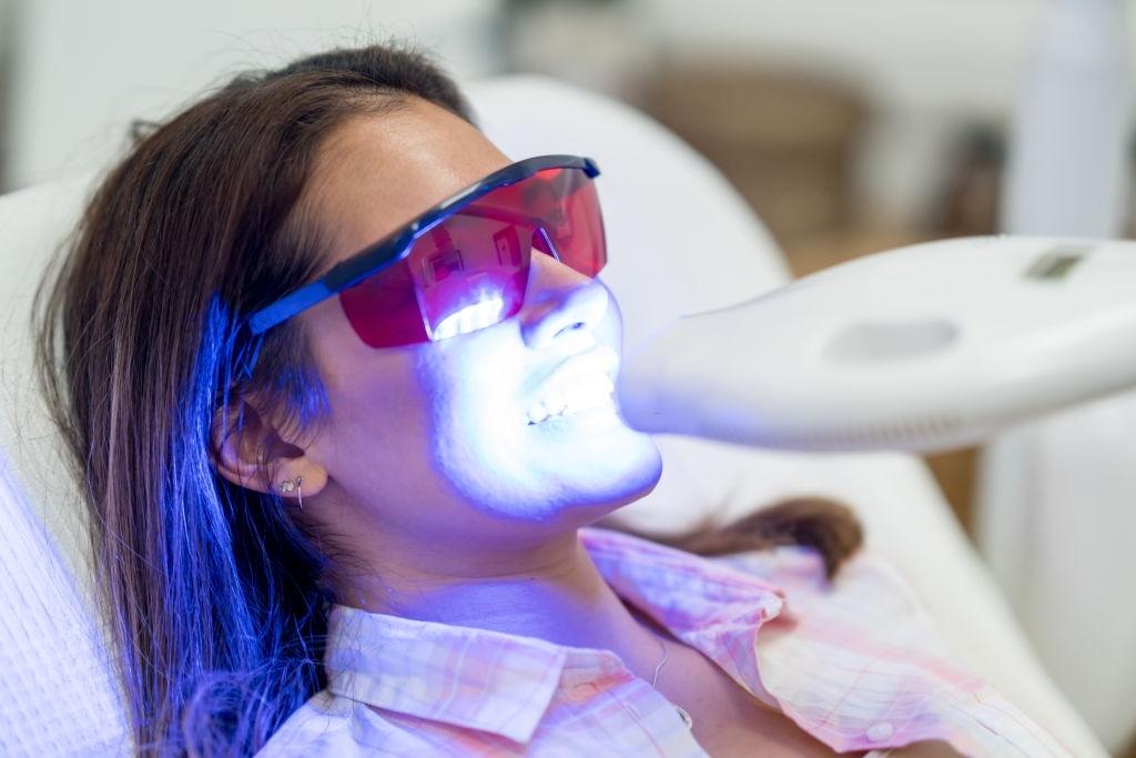 انجام بلیچینگ توسط دندانپزشک