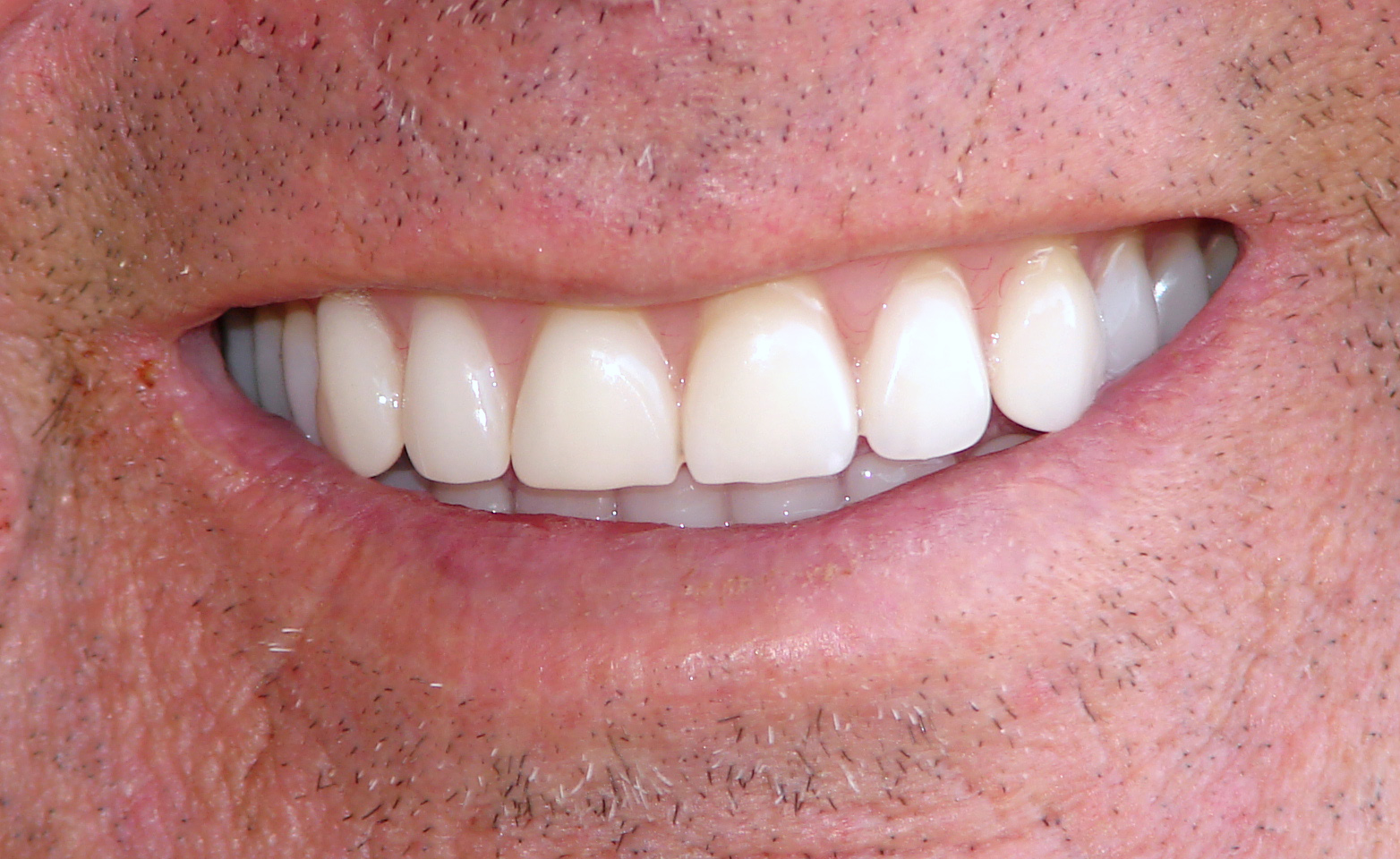 کاشت دندان با ایمپلنت دندان مصنوعی یا ایمپلنت