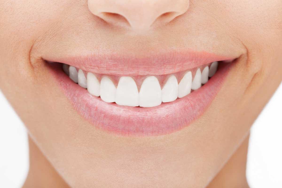 دندان های سفید بعد از بلیچینگ
