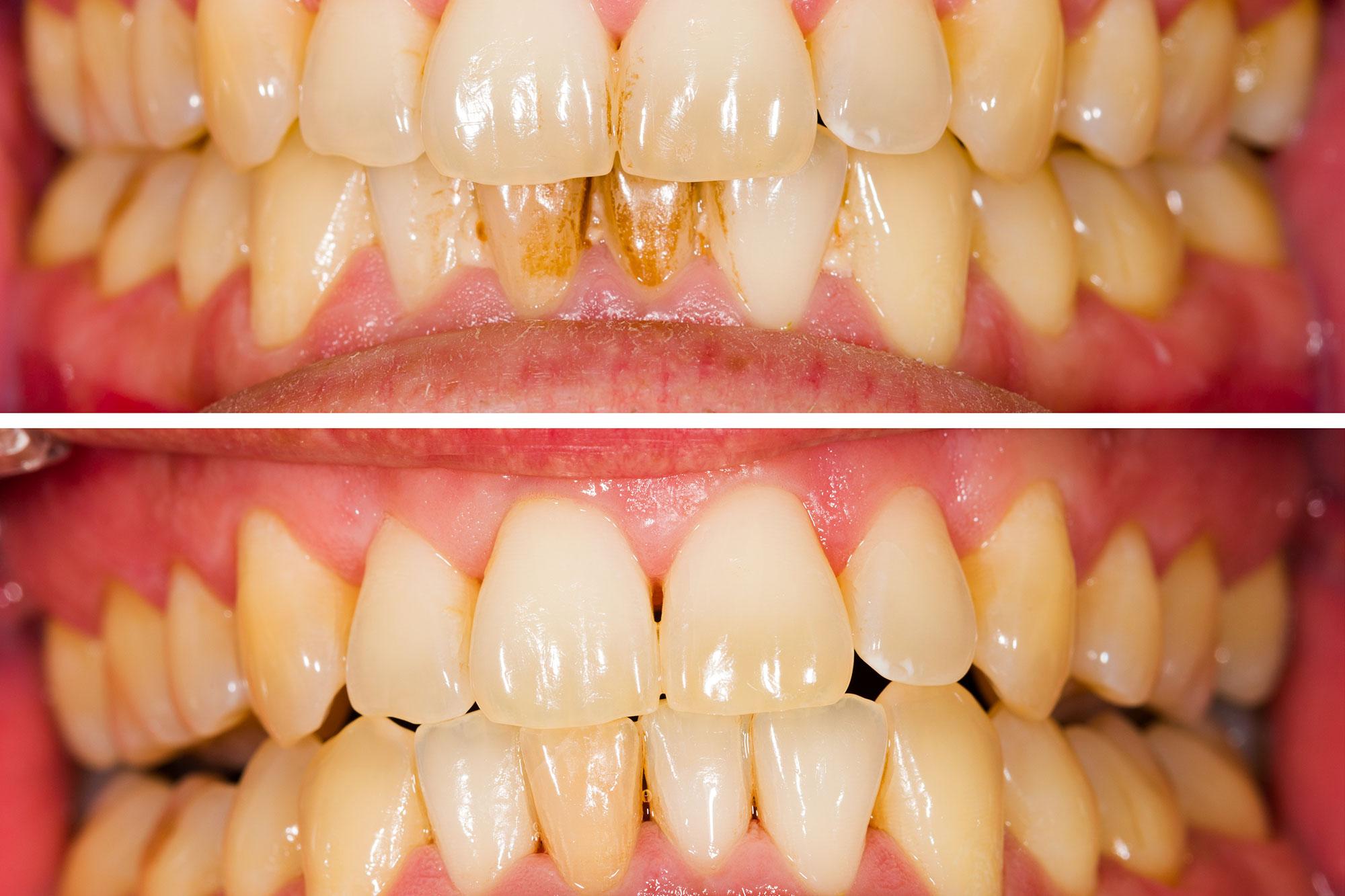 مشکلات ژنتیکی دندان