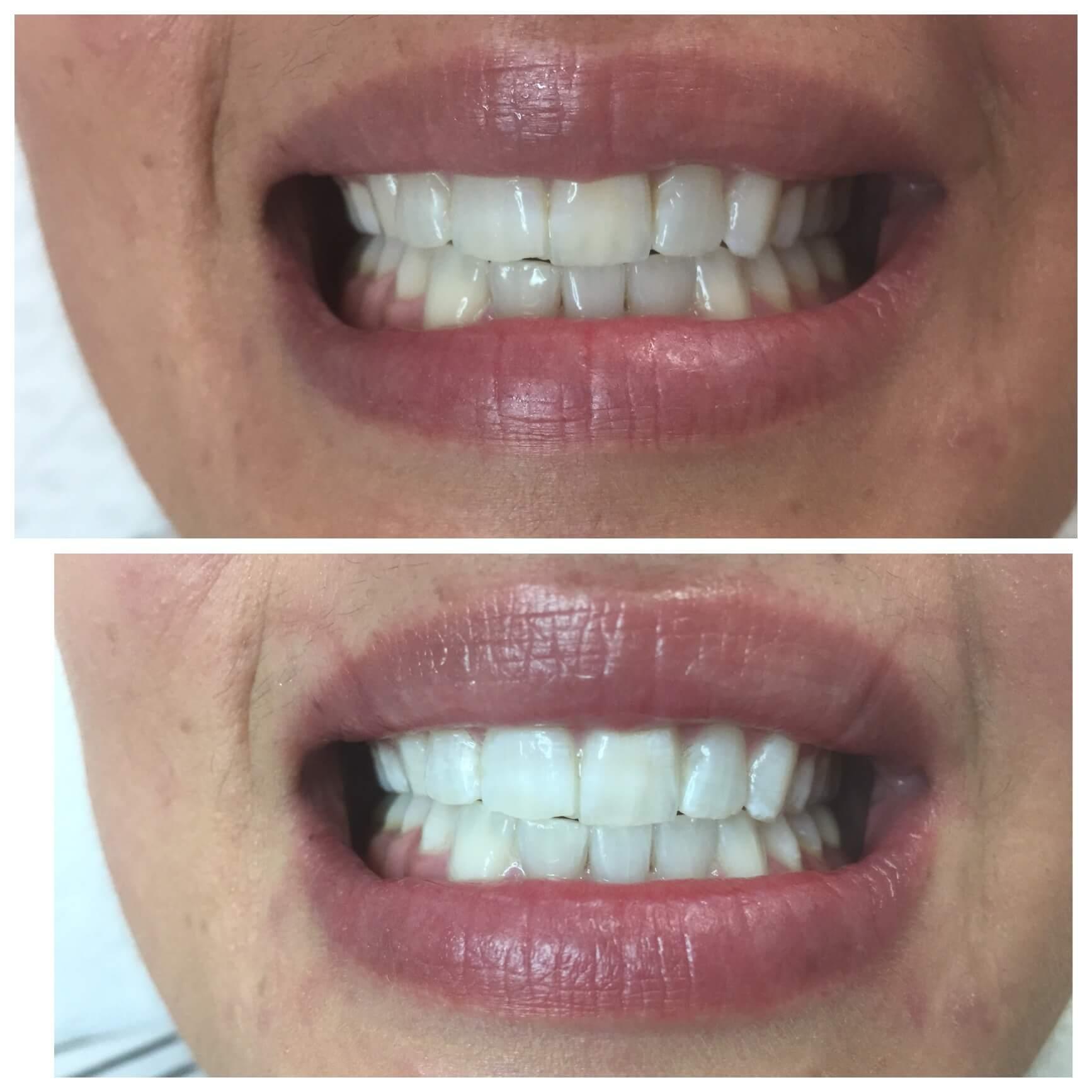 پاک شدن دندان ها پس از مسواک