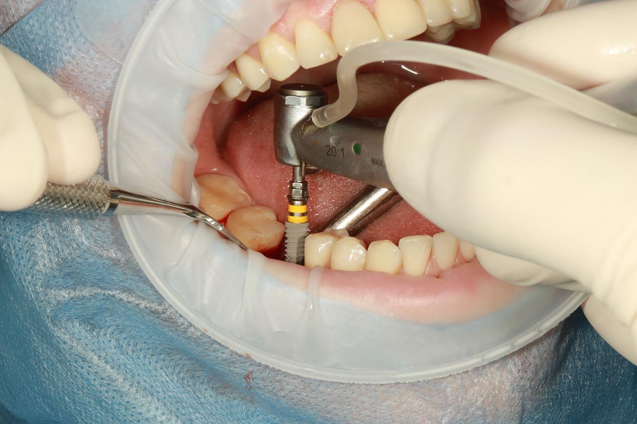 مرحله آخر کاشت دندان