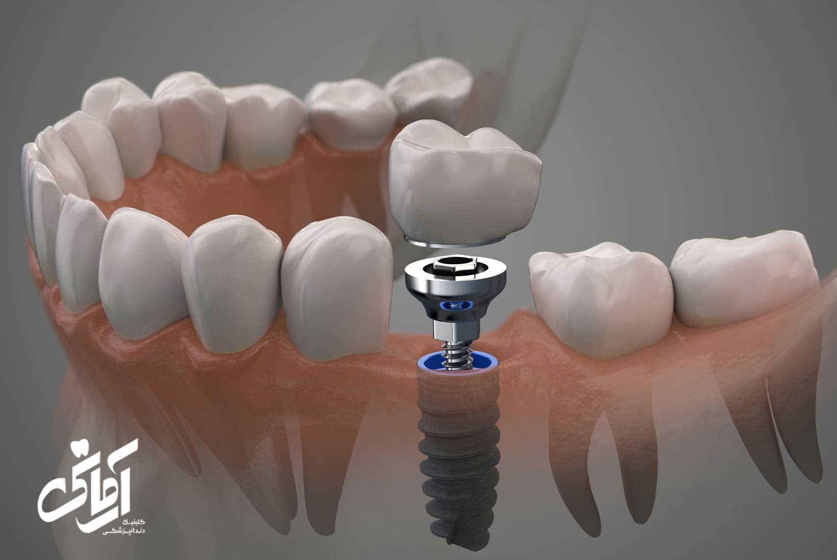 درد کاشت دندان و کاشت ایمپلنت