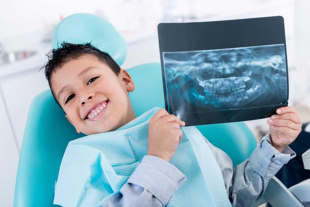 تصویر اشعه ایکس دندان اطفال