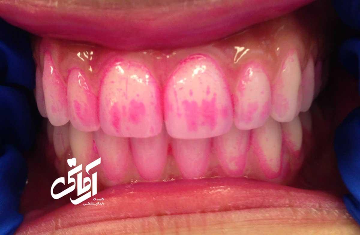 پلاک دندان چیست؟ چگونه جرمگیری می شود؟