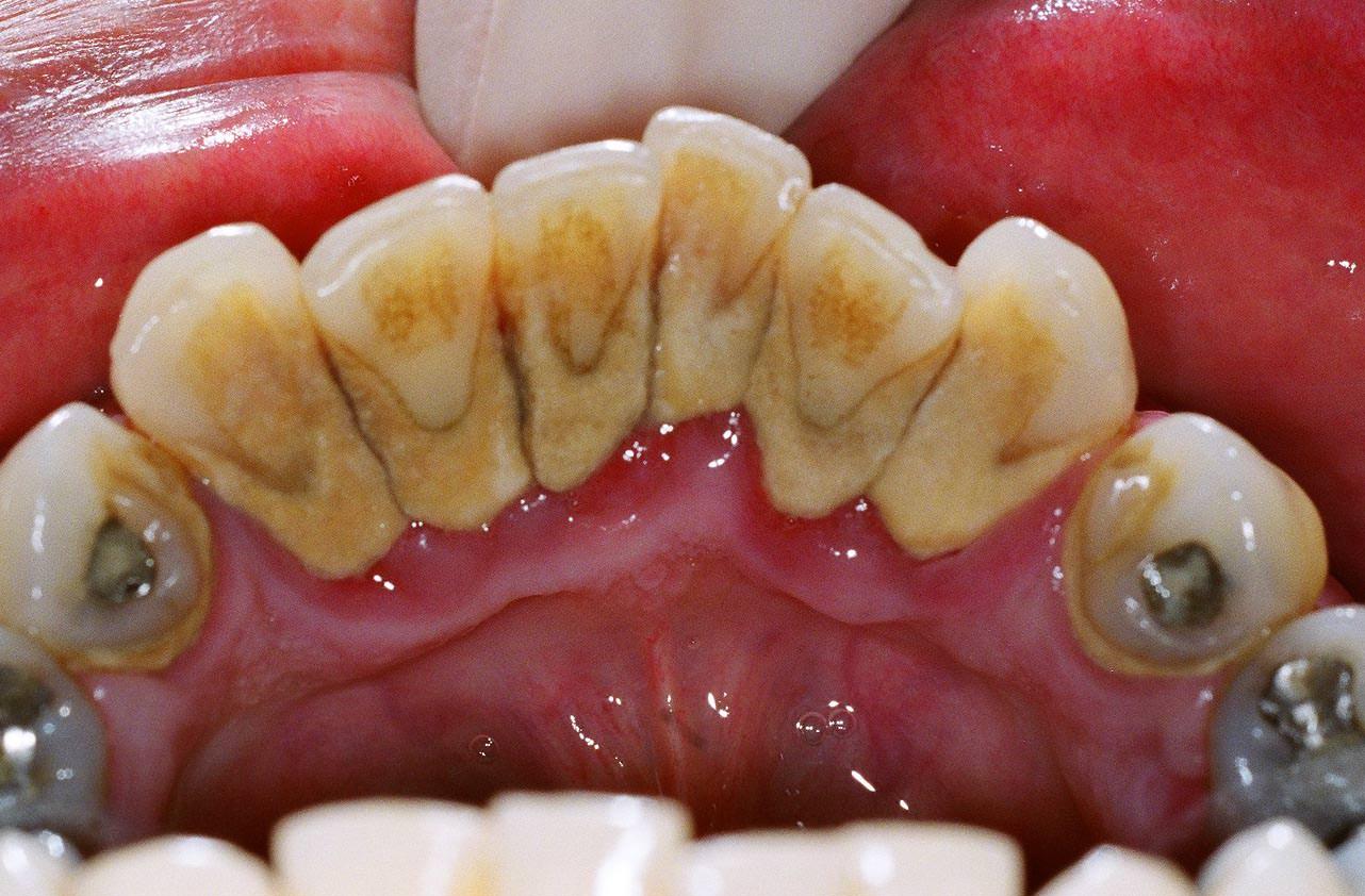پلاک دندان و جرم بسیار سنگین