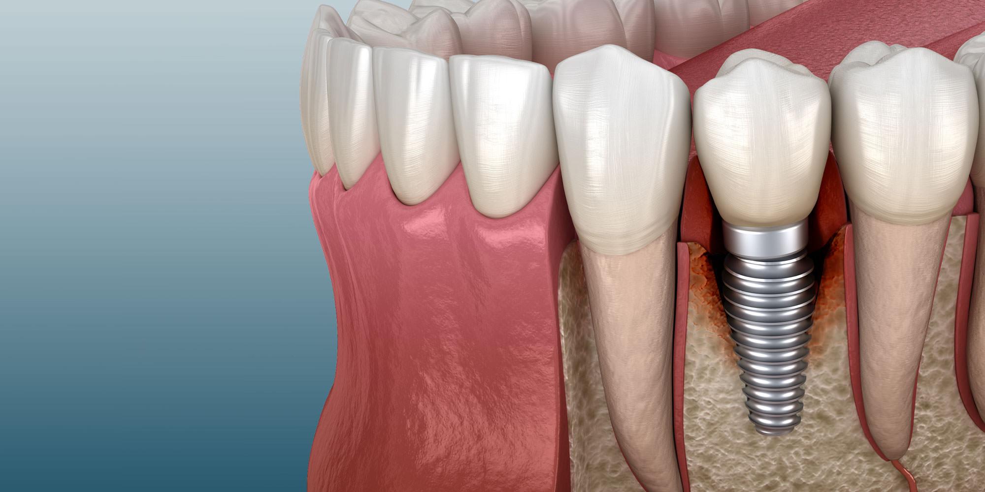 نمای زیبا از دندان کاشته شده در دهان و لثه