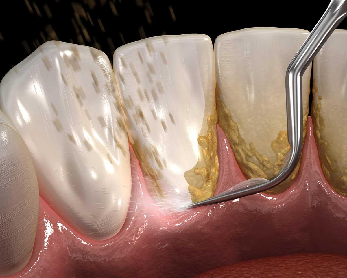 جرم گیری پلاک دندان
