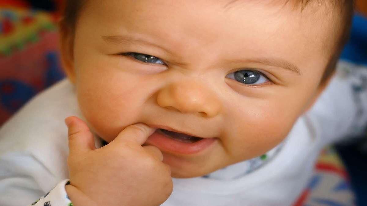 تورم لثه در نوزادان