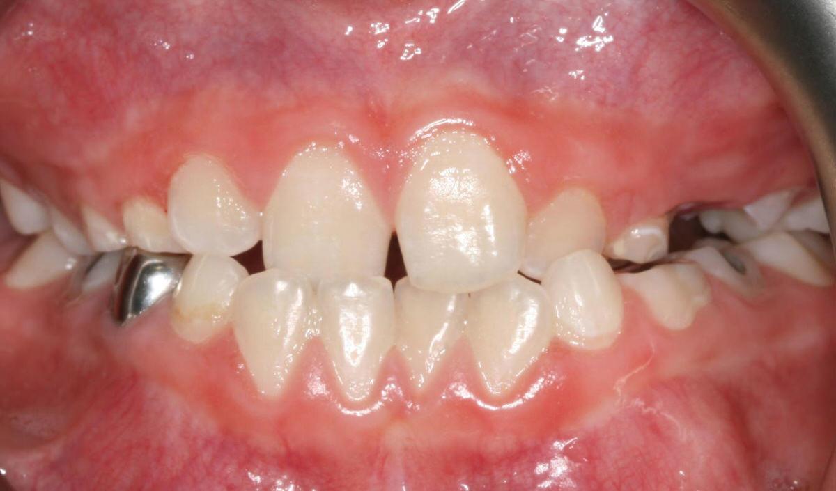 دندان های بسیار نا مرتب