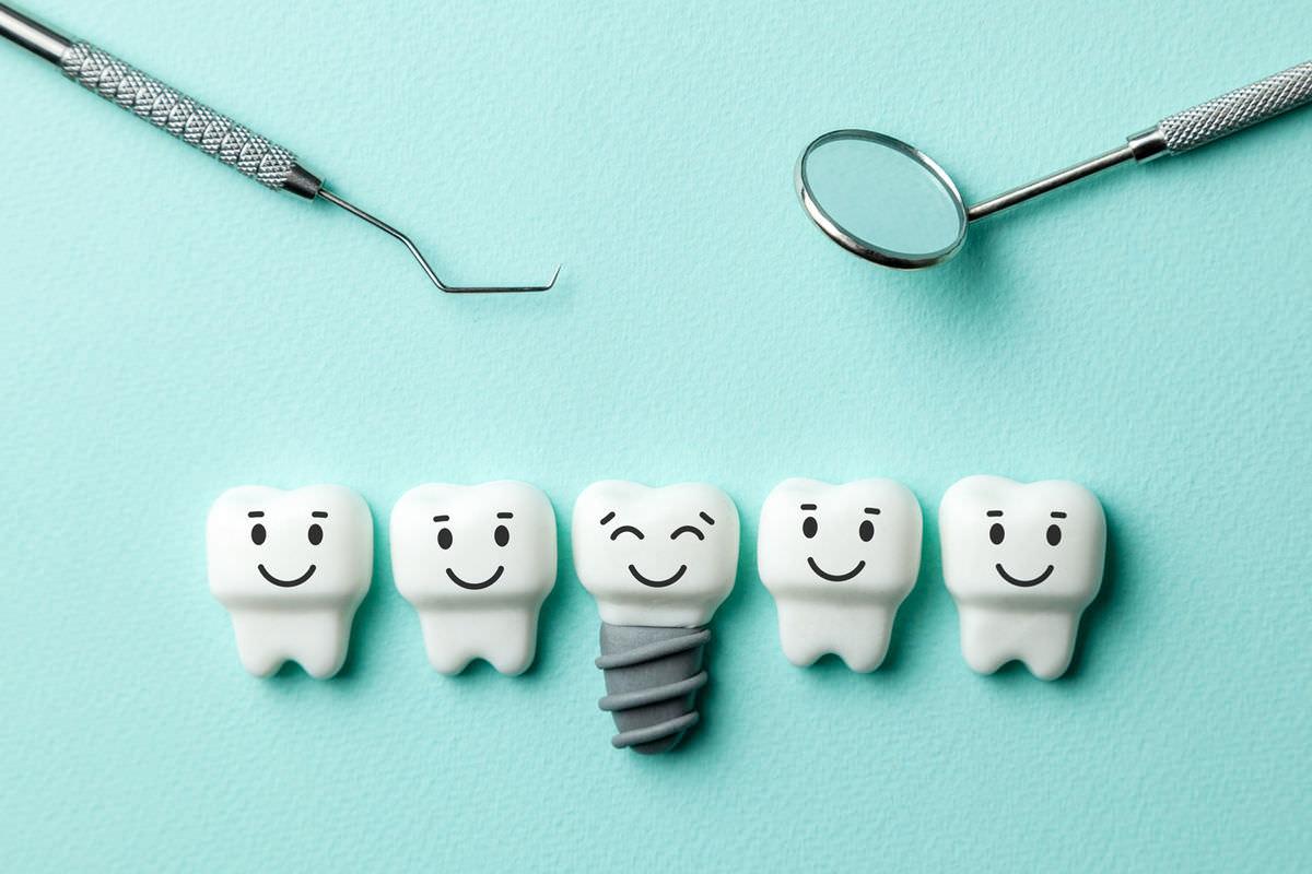 ایمپلنت دندان: استاندارد طلایی در جایگزینی دندان از دست رفته