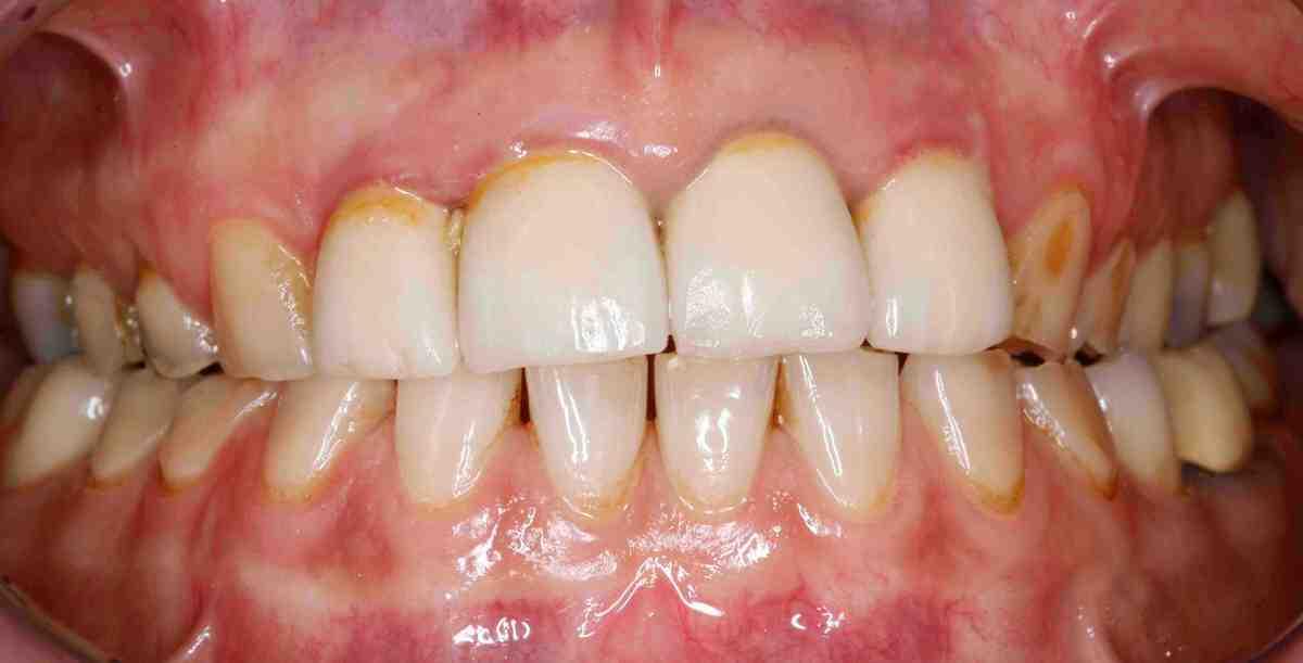 فرسایش دندان و مشکلاتی که در بر دارد