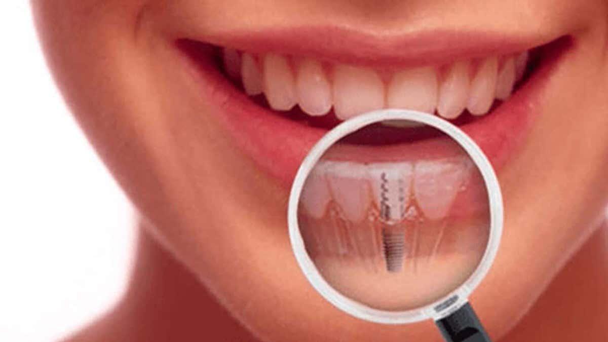 بیش از 95 درصد از درمان های ایمپلنتولوژی در رابطه با مشکلات ایمپلنت دندان ایجاد نمی کنند.