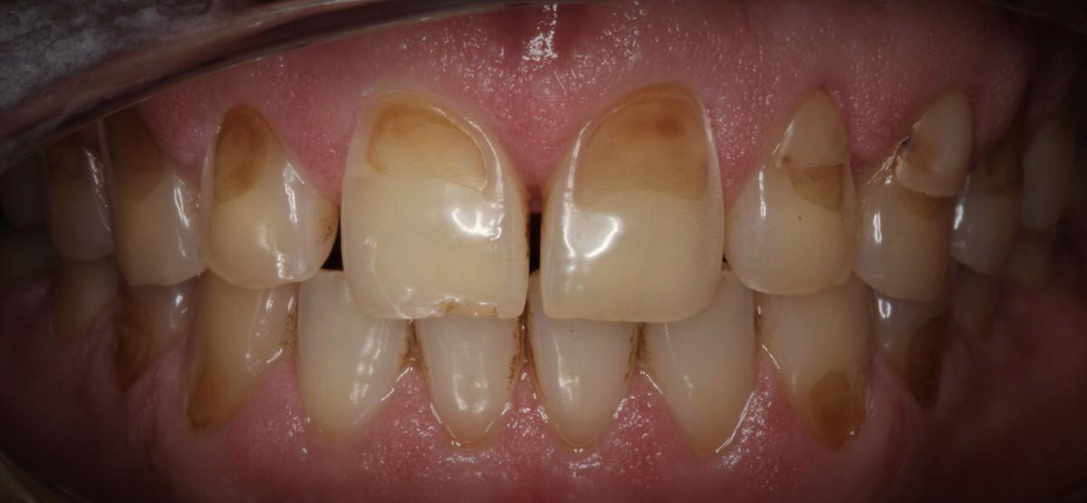 فرسایش دندان شدید
