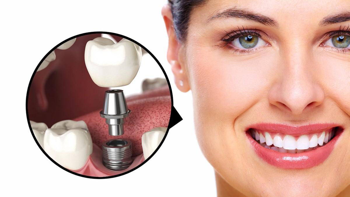 مشکلات کاشت دندان