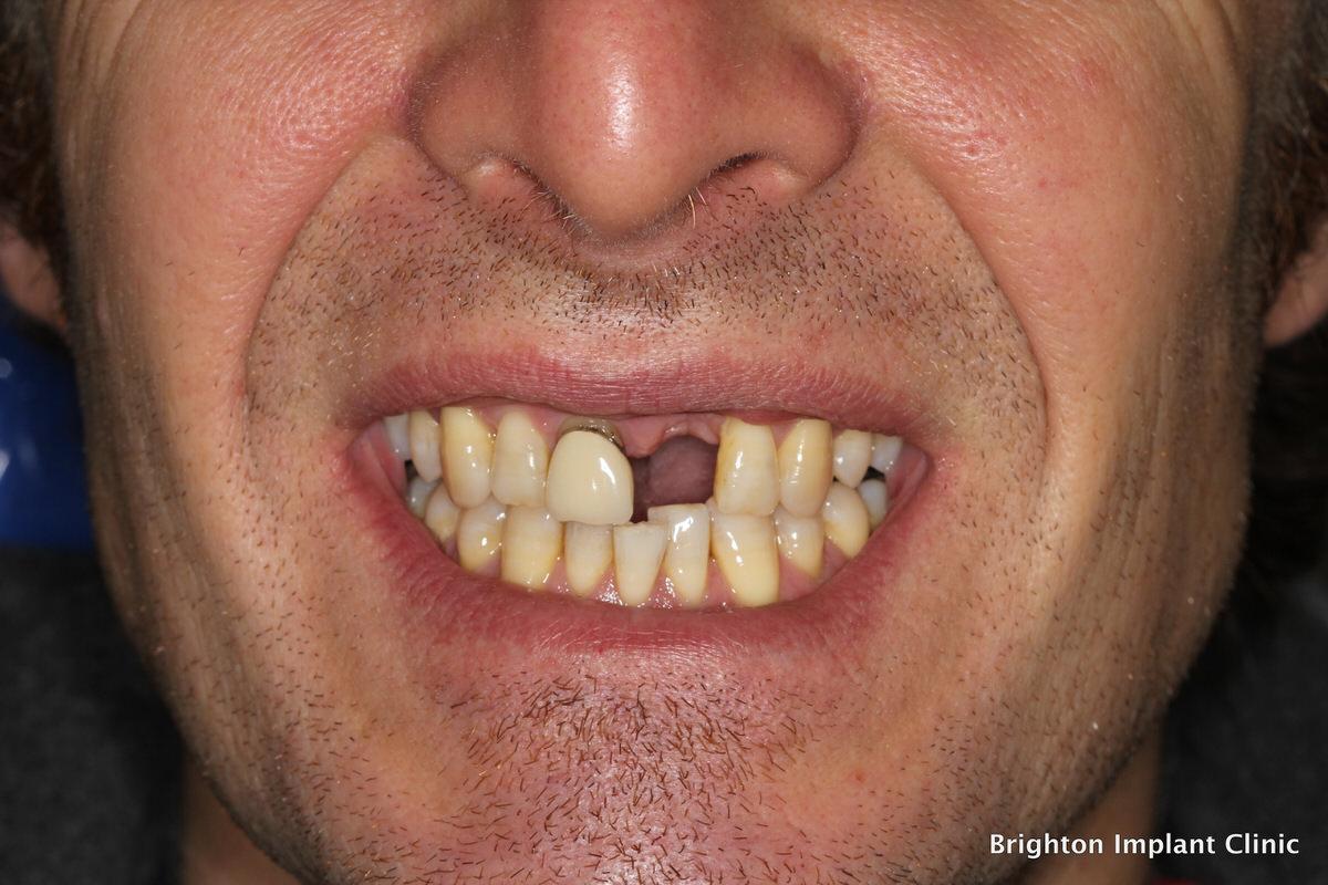 شایع ترین مشکلات کاشت دندان چیست؟
