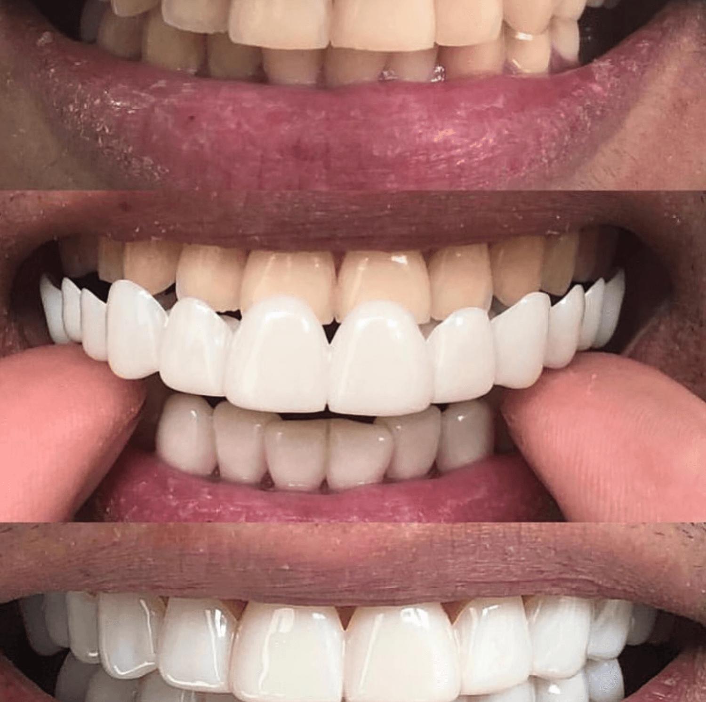 آیا روکش لمینت متحرک به دندان های شما آسیب می رساند؟