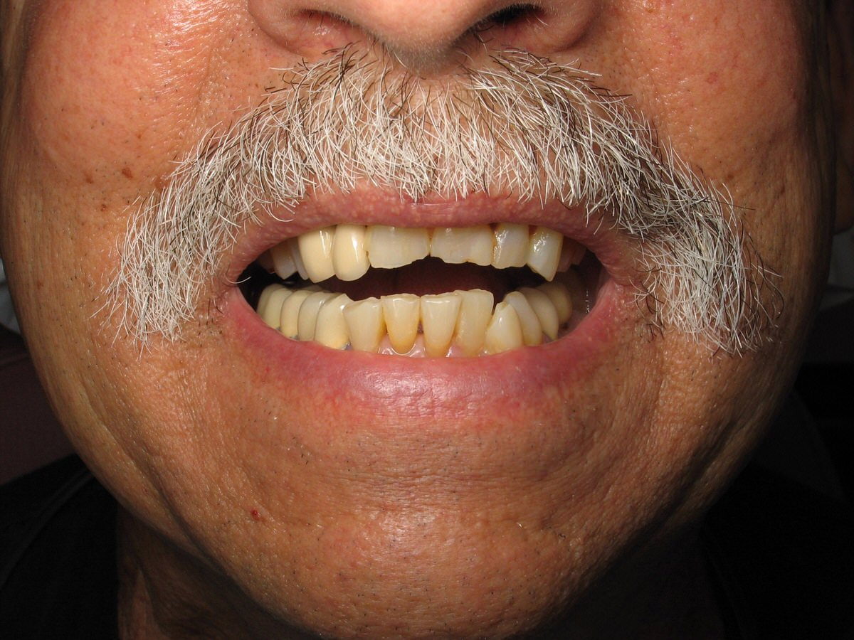 دندان قروچه شدید در مرد میانسال